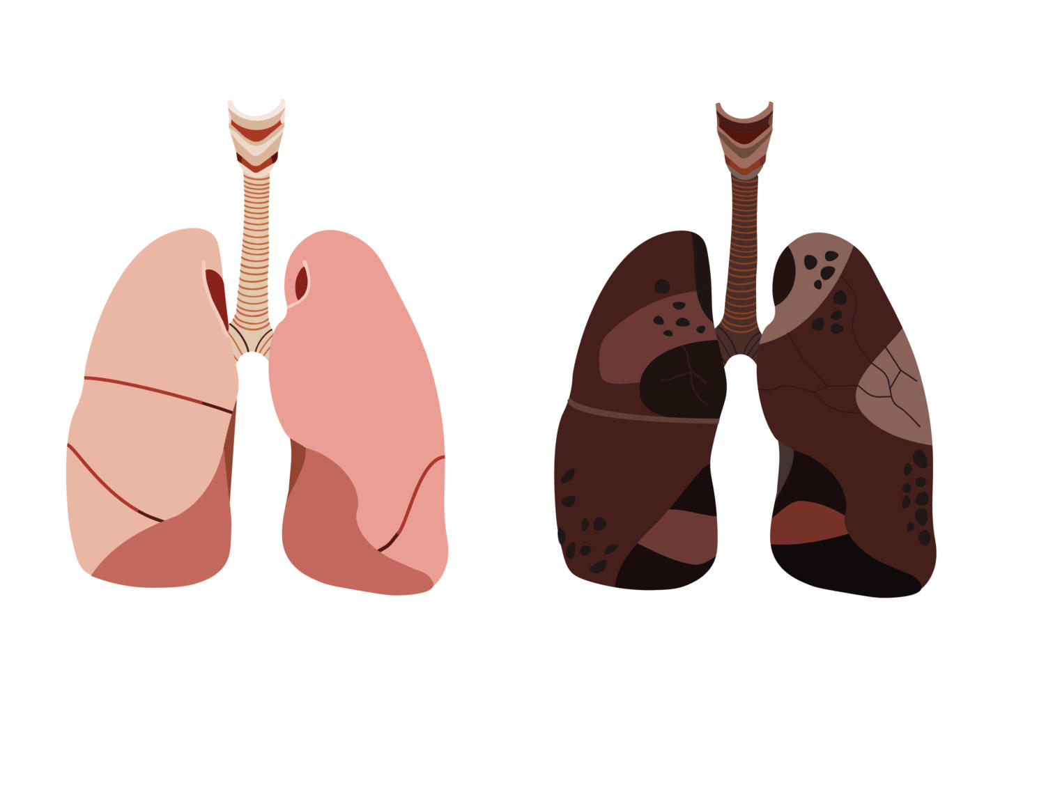 The lung shown on the right reveals the harmful effects of vaping.